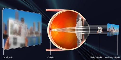 astigmatismus1