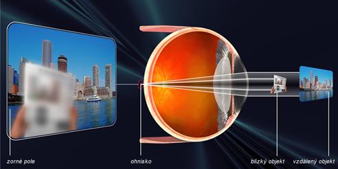 dalekozrakost